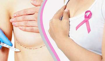 Advanced Oncoplastic techniques